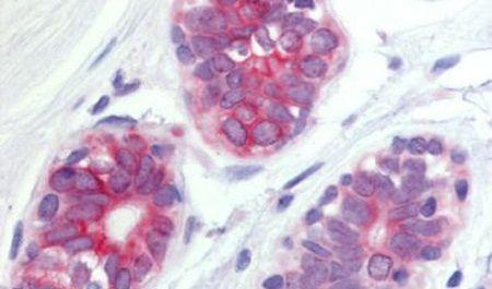 WNT6 Antibody (PA5-34327) in Immunohistochemistry (Paraffin)