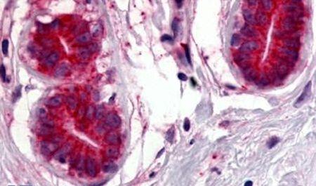 WNT8A Antibody (PA5-34330)