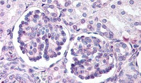 WNT9B Antibody (PA5-34335)