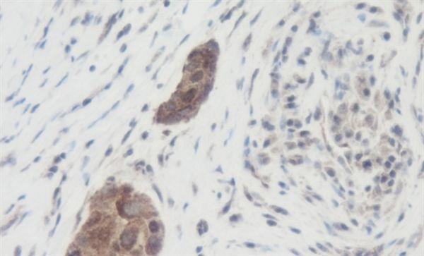 WNT1 Antibody (PA1-84986) in Immunohistochemistry (Paraffin)
