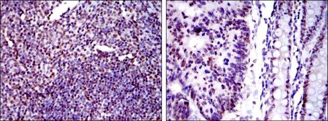 Ku80 Antibody (MA5-15873) in Immunohistochemistry