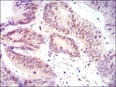 YAP1 Antibody (MA5-17200) in Immunohistochemistry