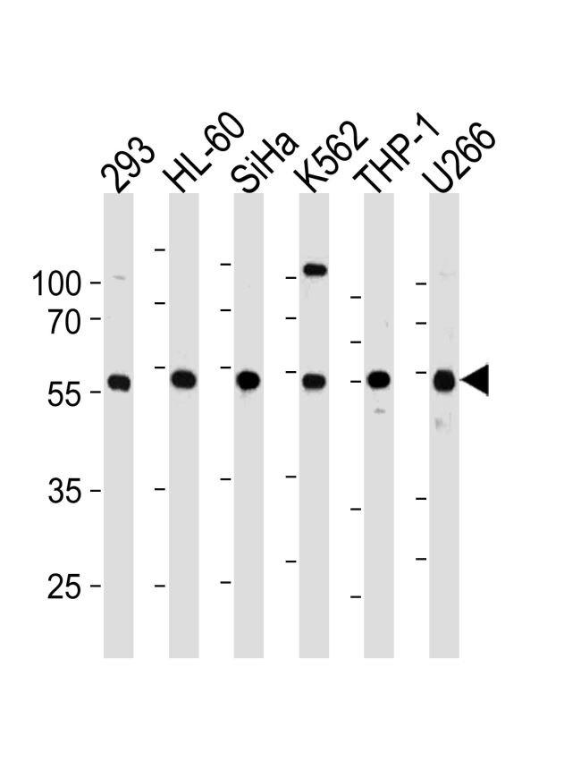YY1 Antibody (PA5-12205) in Western Blot