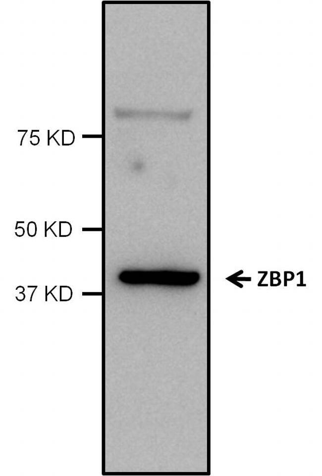 ZBP1 Antibody (PA5-20455) in Western Blot