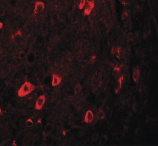 ZBTB3 Antibody (PA5-21083)
