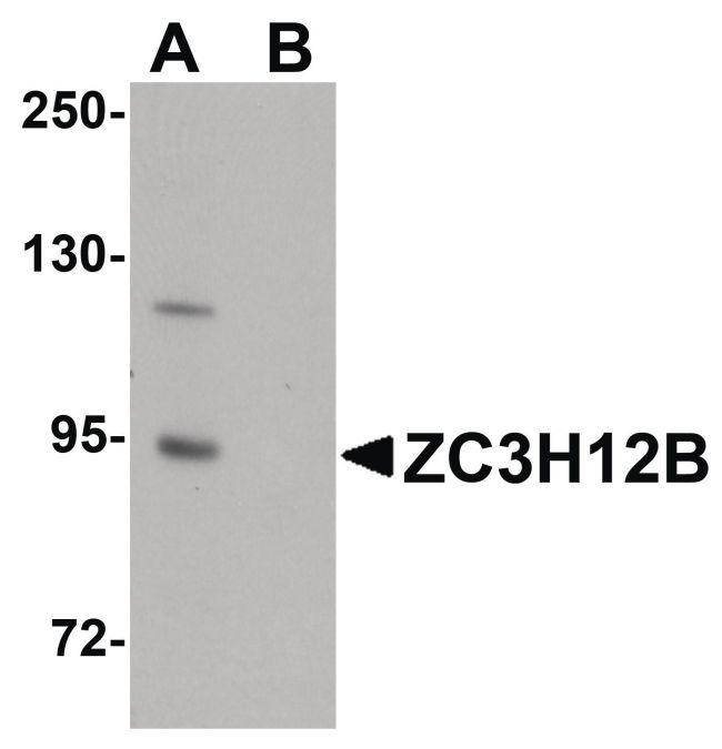 ZC3H12B Antibody (PA5-20927) in Western Blot