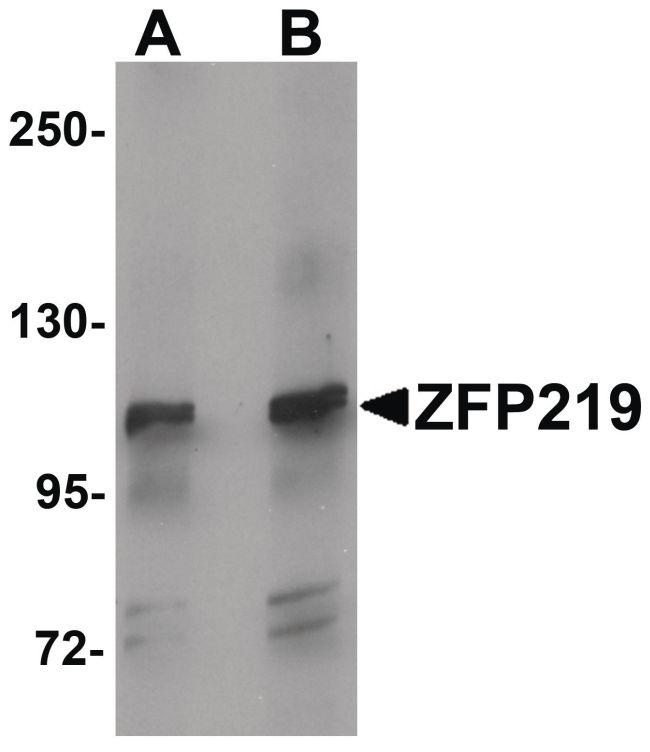 ZFP219 Antibody (PA5-21120) in Western Blot