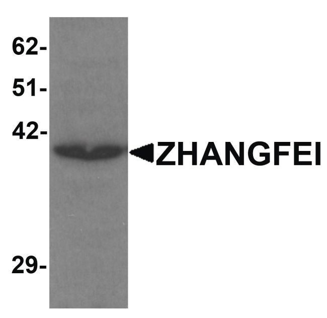 CREBZF Antibody (PA5-21106) in Western Blot