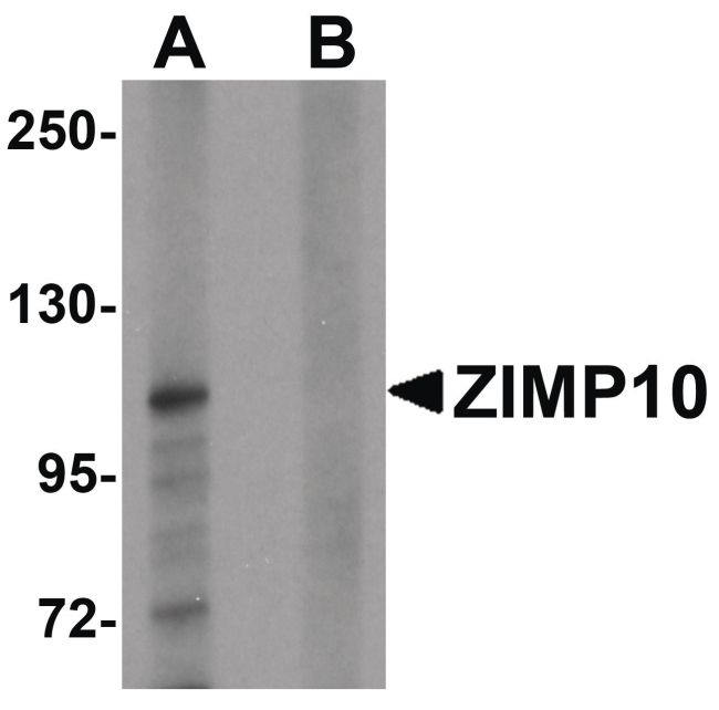 ZMIZ1 Antibody (PA5-21133) in Western Blot