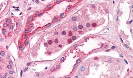 ZIP14 Antibody (PA5-34203) in Immunohistochemistry (Paraffin)