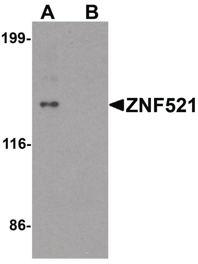 ZNF521 Antibody (PA5-34388) in Western Blot