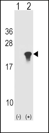 alpha Synuclein Antibody (PA5-13397) in Western Blot