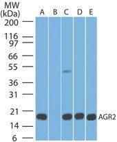 AGR2 Antibody (MA5-16244) in Western Blot