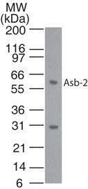 ASB2 Antibody (PA1-41304) in Western Blot