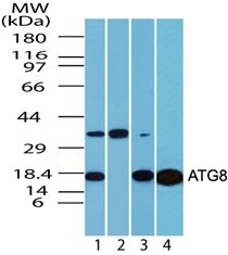 LC3A Antibody (PA5-23180) in Western Blot