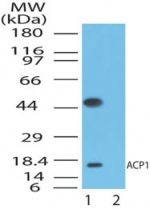 Acid Phosphatase 1 Antibody (PA1-41704)