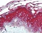 ALAS1 Antibody (PA1-41152)