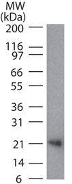 RANKL / CD254 Antibody (MA5-16156)