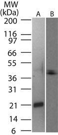 RANKL Antibody (PA1-41318)