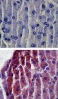 TLR2 Antibody (PA1-41045) in Immunohistochemistry (Paraffin)