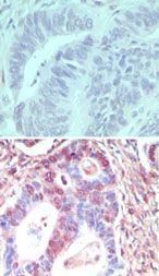 TLR3 Antibody (PA5-23292) in Immunohistochemistry (Paraffin)