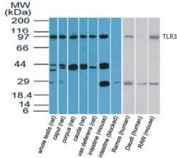 TLR3 Antibody (PA5-23292) in Western Blot
