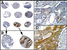 Caspase 1 Antibody (MA5-16215)