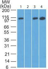 DAAM2 Antibody (PA5-23201) in Western Blot