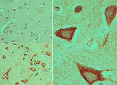 DVL3 Antibody (PA5-23401) in Immunohistochemistry (Paraffin)