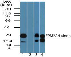 EPM2A Antibody (PA5-23252) in Western Blot