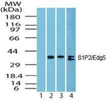 S1PR2 Antibody (PA5-23208) in Western Blot