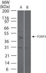 FOXP3 Antibody (PA5-23169) in Western Blot