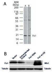 FIS1 Antibody (PA1-41082) in Western Blot