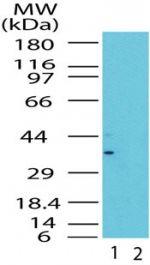 GBL Antibody (PA1-41327) in Western Blot
