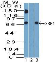 GBP1 Antibody (PA5-23509) in Western Blot