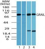 RNF128 Antibody (PA5-23164)