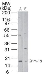 NDUFA13 Antibody (PA1-41620) in Western Blot