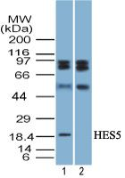 HES5 Antibody (PA5-23498) in Western Blot