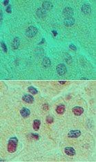 HNF6 Antibody (PA5-23459)