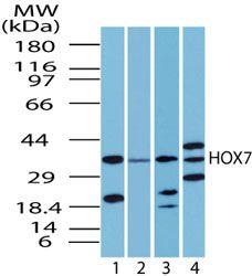 MSX1 Antibody (PA5-23176) in Western Blot