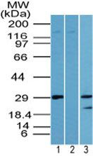 LIN28A Antibody (PA5-23408) in Western Blot