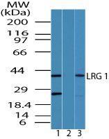 LRG1 Antibody (PA5-23266)