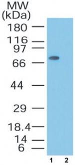 MTA2 Antibody (PA1-41581) in Western Blot