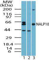 NALP10 Antibody (PA5-23311) in Western Blot