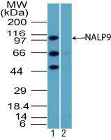 NALP9 Antibody (PA5-23320) in Western Blot