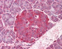 NOD1 Antibody (PA1-41036) in Immunohistochemistry