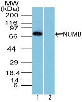 NUMB Antibody (PA5-23486) in Western Blot