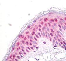 NUP35 Antibody (PA5-23338) in Immunohistochemistry (Paraffin)