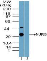 NUP35 Antibody (PA5-23338) in Western Blot