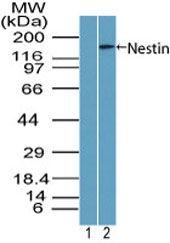 Nestin Antibody (PA5-23386) in Western Blot